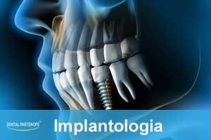 implantologia-dentale-villaricca-dentalpartenope