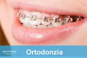 ortodonzia-fissa-mobile-villaricca-dentalpartenope