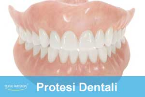 protesi-dentali-villaricca-dentalpartenope