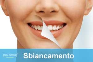 sbiancamento-professionale-villaricca-dentalpartenope