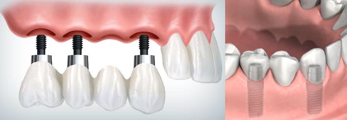 protesi-a-carico-immediato-dental-partenope